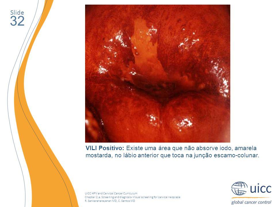 Slide 32. Existe uma área que não absorve iodo, amarela mostarda, no lábio superior, adjacente à junção escamo-colunar. O exame de VILI é positivo.