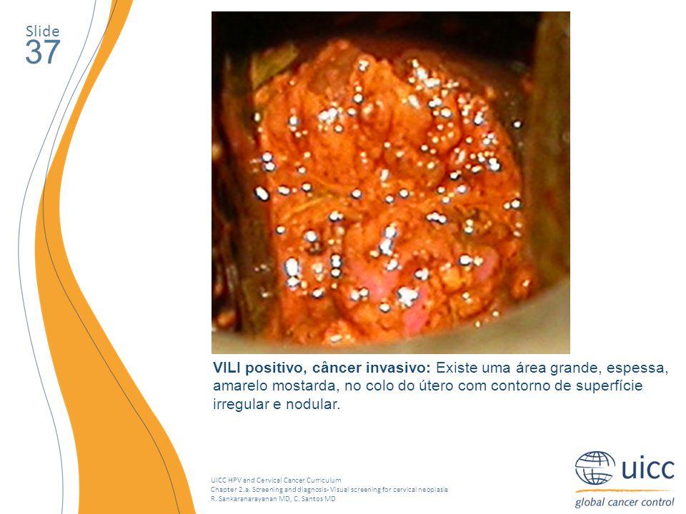 Slide 37. O crescimento do tumor no colo do útero se torna amarelo mostarda depois da aplicação de Lugol, que indica um exame de VILI positivo.