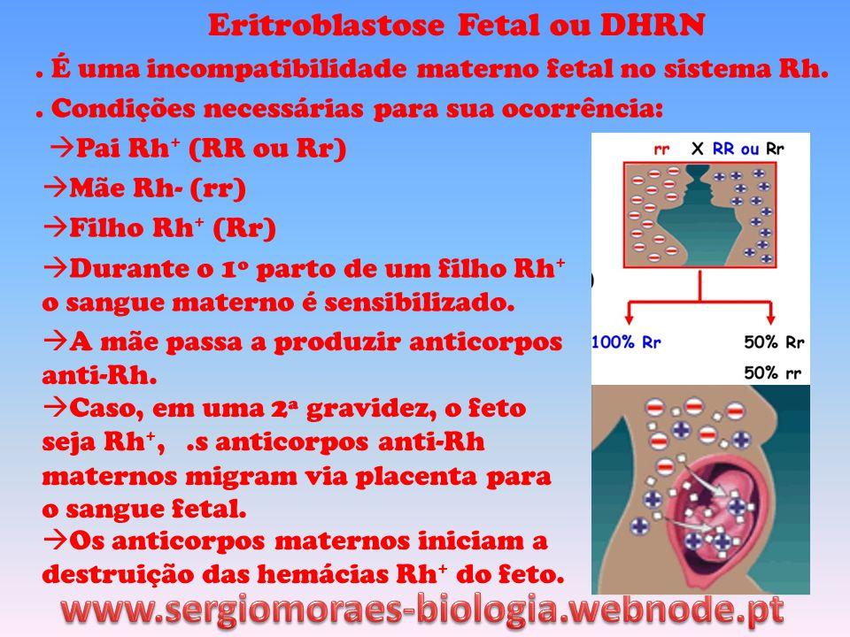 www.sergiomoraes-biologia.webnode.pt Eritroblastose Fetal ou DHRN
