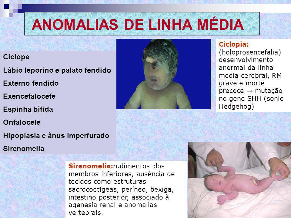ANOMALIAS DE LINHA MÉDIA