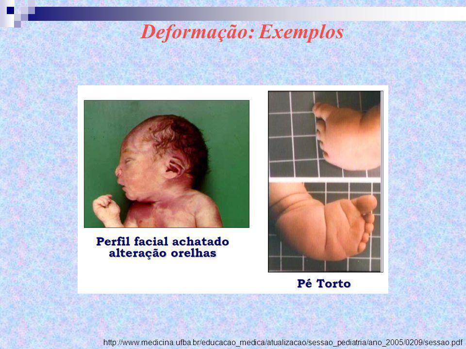 Deformação: Exemplos http://www.medicina.ufba.br/educacao_medica/atualizacao/sessao_pediatria/ano_2005/0209/sessao.pdf.