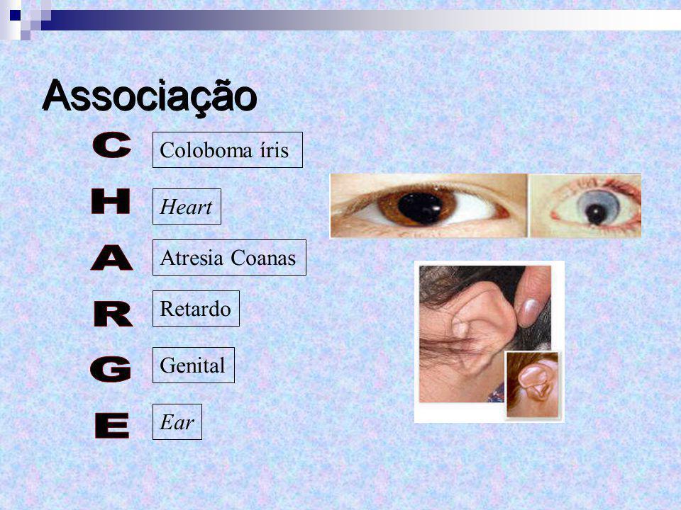 Associação CHARGE Coloboma íris Heart Atresia Coanas Retardo Genital