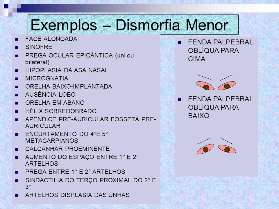 Exemplos – Dismorfia Menor