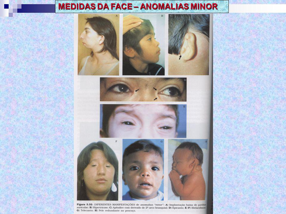 MEDIDAS DA FACE – ANOMALIAS MINOR