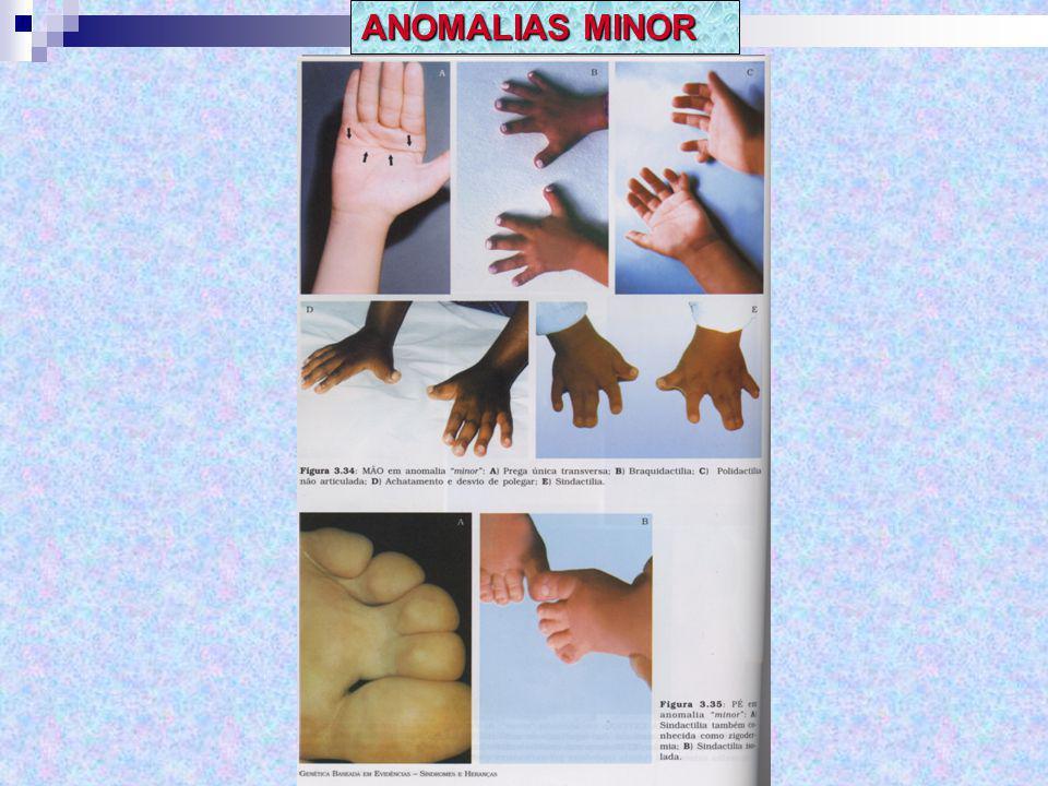 ANOMALIAS MINOR