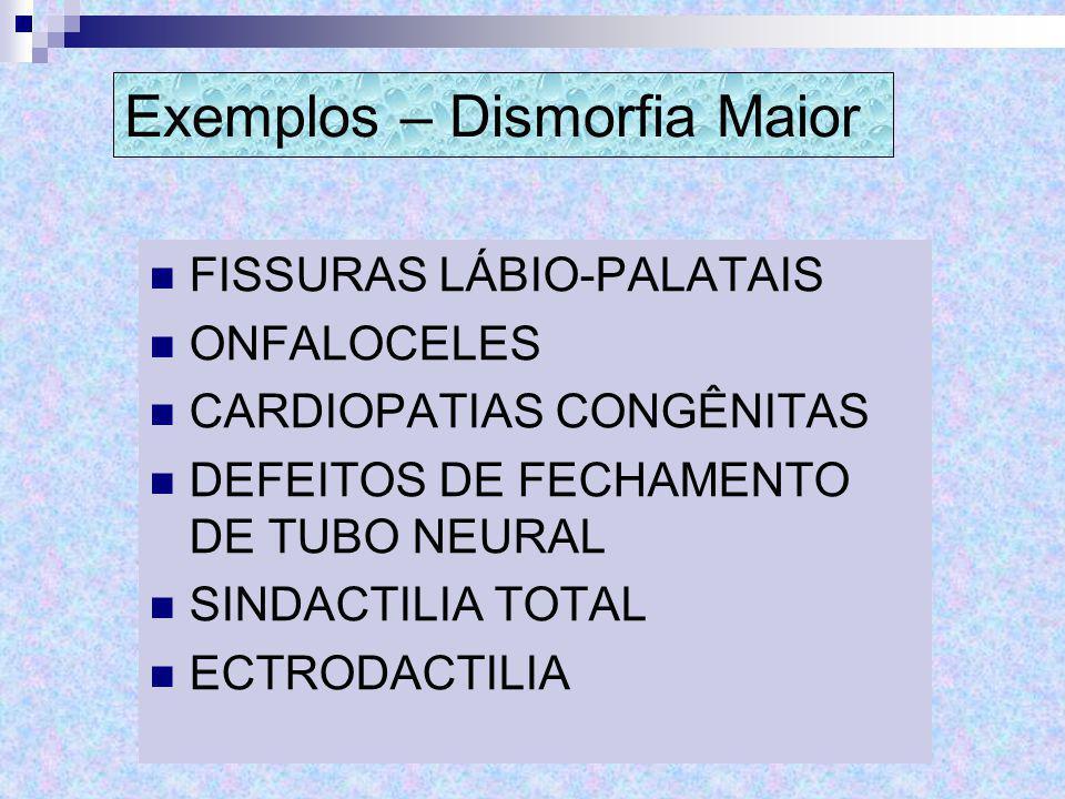 Exemplos – Dismorfia Maior
