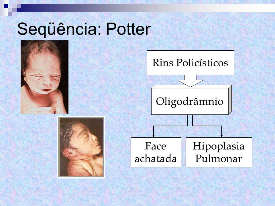 Seqüência: Potter Rins Policísticos Oligodrâmnio Face achatada