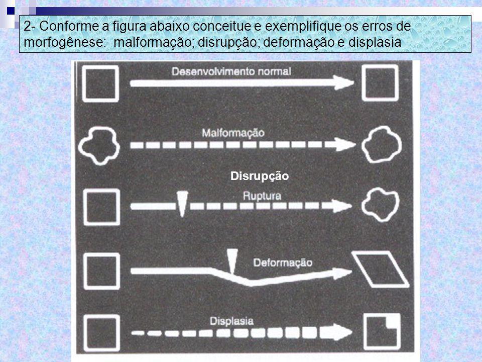 2- Conforme a figura abaixo conceitue e exemplifique os erros de morfogênese: malformação; disrupção; deformação e displasia