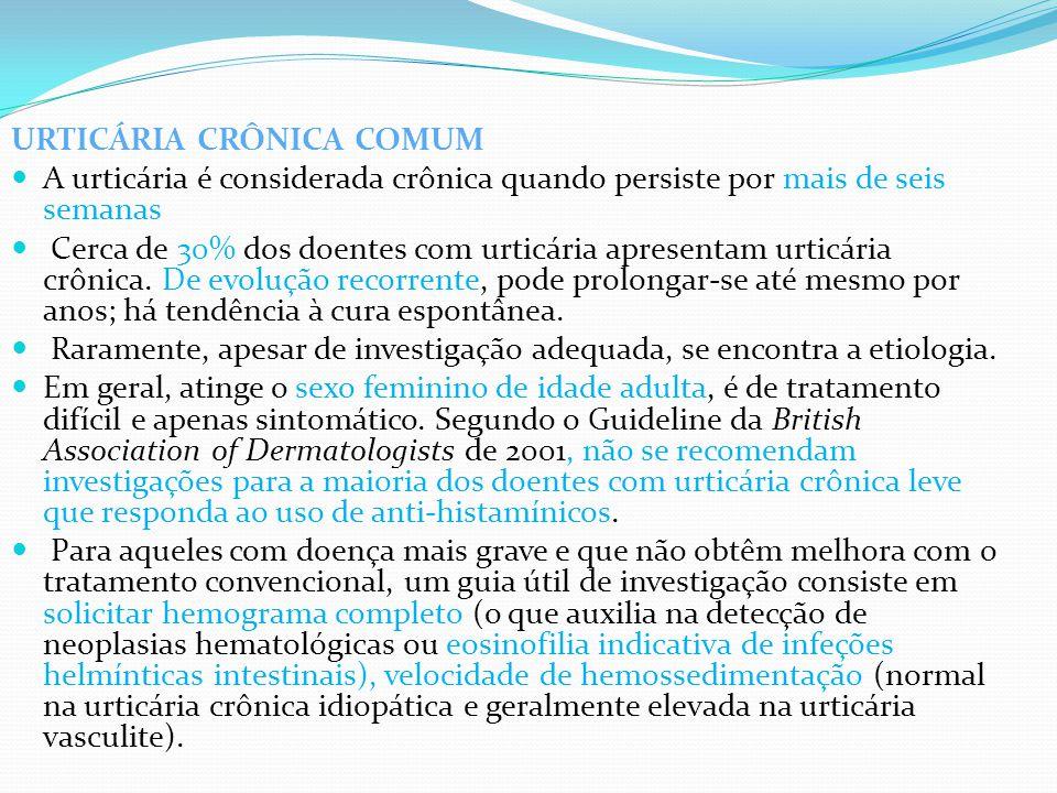 URTICÁRIA CRÔNICA COMUM