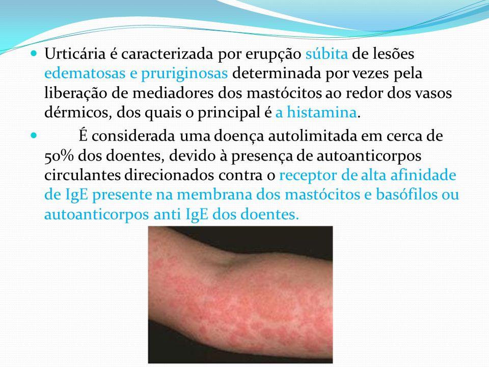 Urticária é caracterizada por erupção súbita de lesões edematosas e pruriginosas determinada por vezes pela liberação de mediadores dos mastócitos ao redor dos vasos dérmicos, dos quais o principal é a histamina.