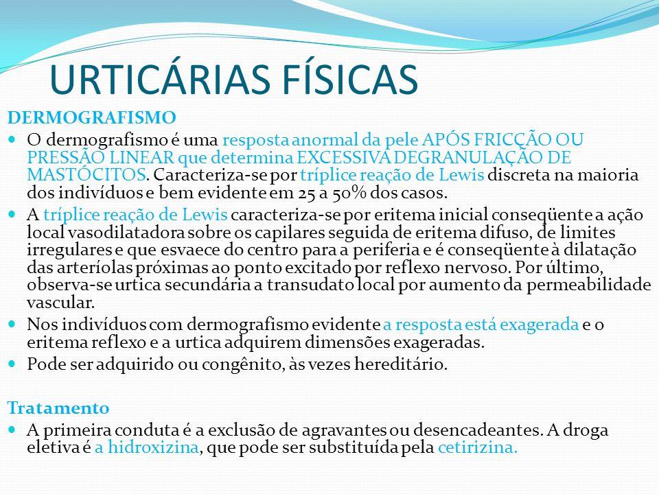 URTICÁRIAS FÍSICAS DERMOGRAFISMO