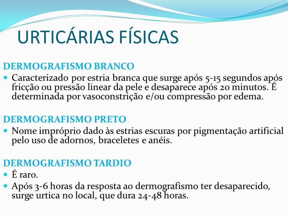 URTICÁRIAS FÍSICAS DERMOGRAFISMO BRANCO