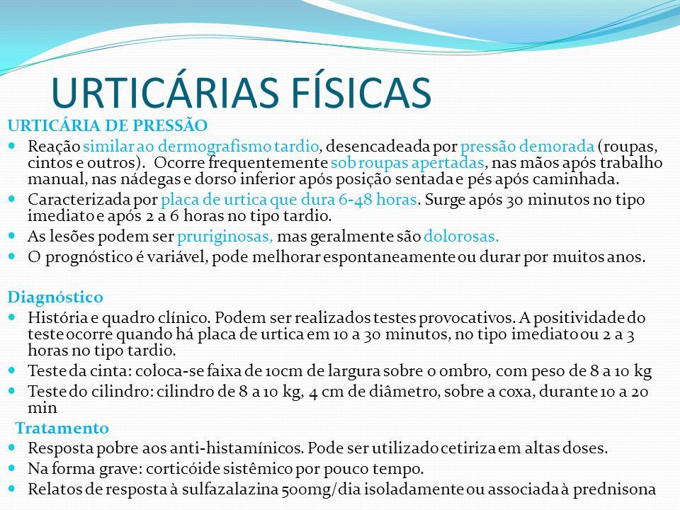 URTICÁRIAS FÍSICAS URTICÁRIA DE PRESSÃO
