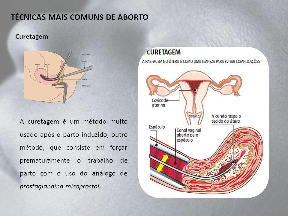 TÉCNICAS MAIS COMUNS DE ABORTO