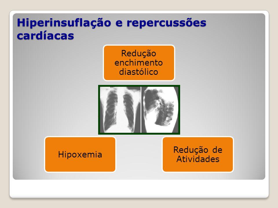 Hiperinsuflação e repercussões cardíacas