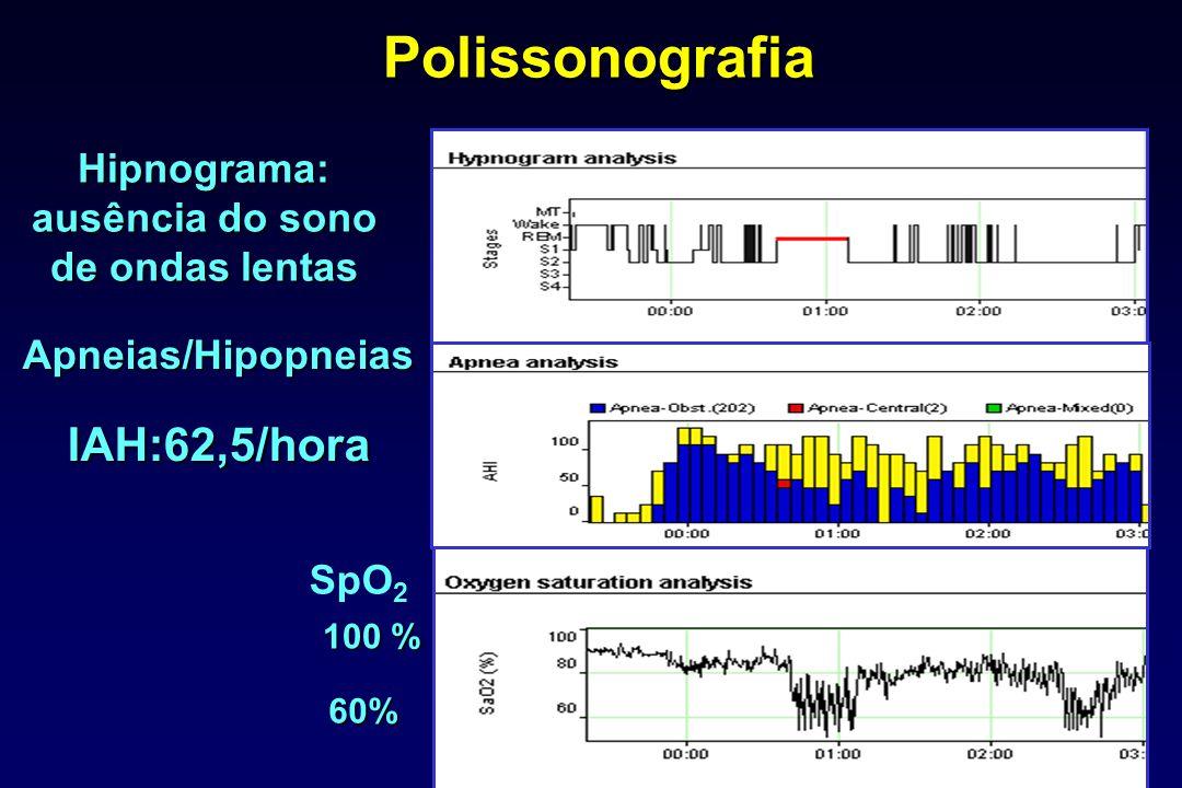 Hipnograma: ausência do sono de ondas lentas