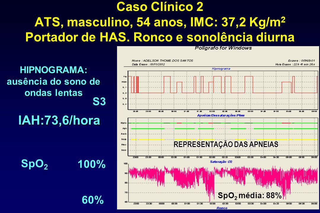 HIPNOGRAMA: ausência do sono de ondas lentas REPRESENTAÇÃO DAS APNEIAS