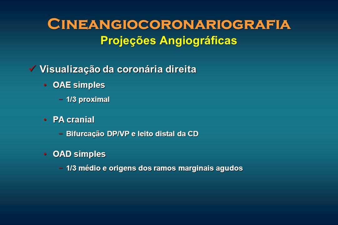 Cineangiocoronariografia Projeções Angiográficas