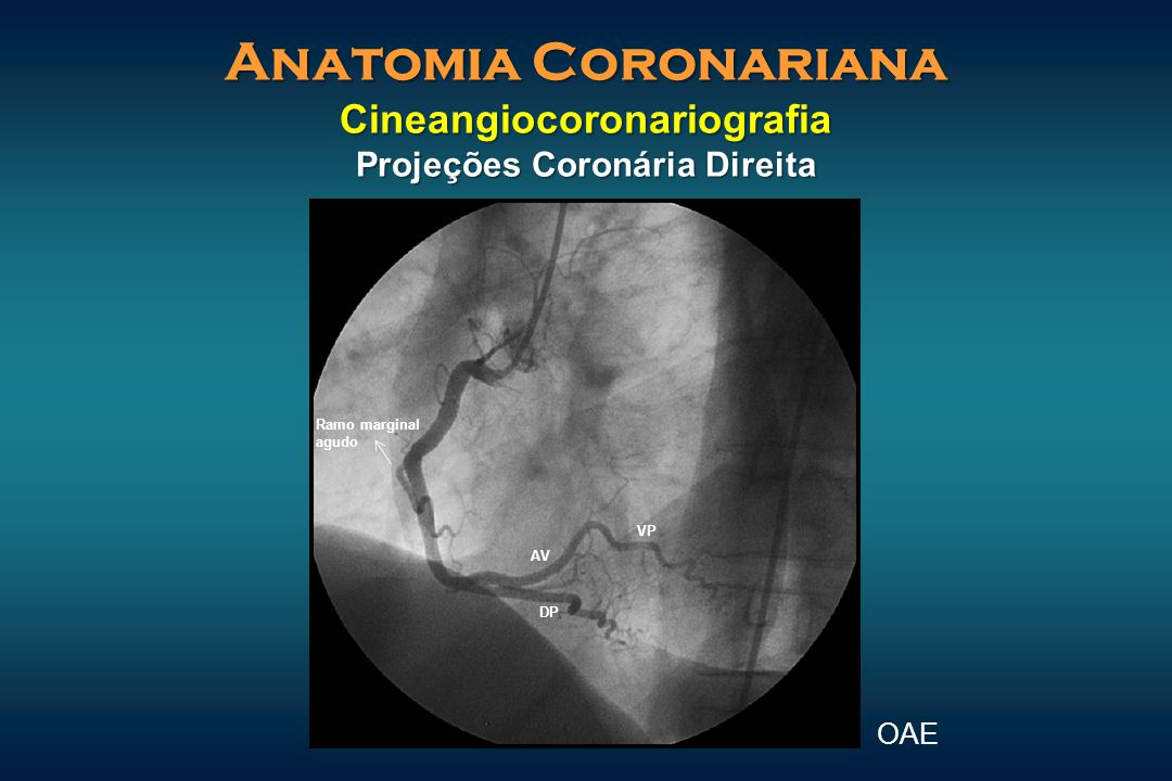 Anatomia Coronariana Cineangiocoronariografia Projeções Coronária Direita