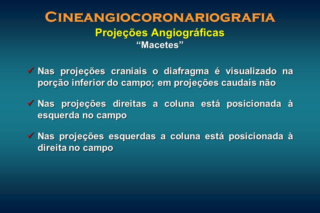 Cineangiocoronariografia Projeções Angiográficas Macetes