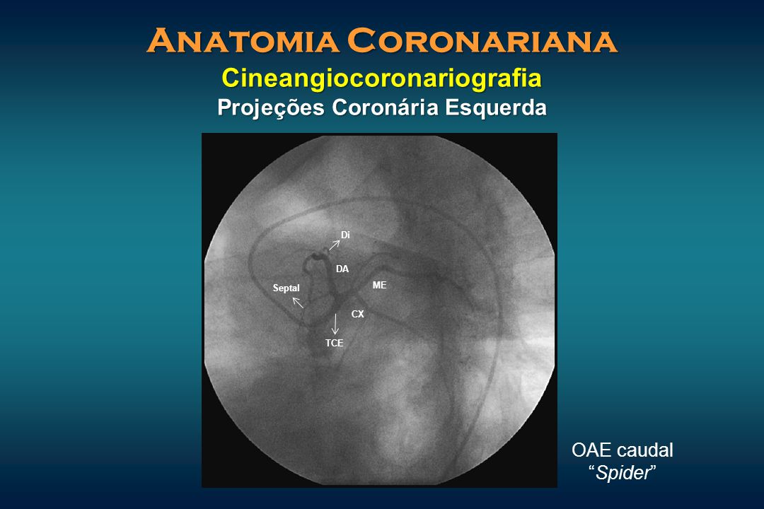 Anatomia Coronariana Cineangiocoronariografia Projeções Coronária Esquerda