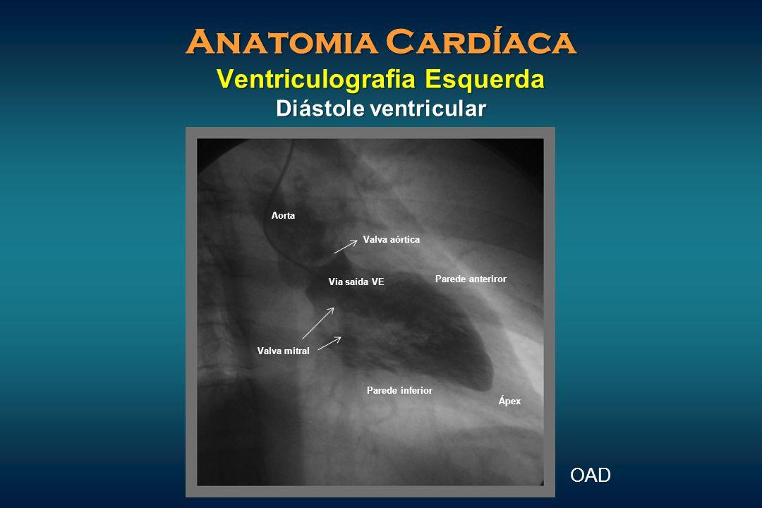 Anatomia Cardíaca Ventriculografia Esquerda Diástole ventricular