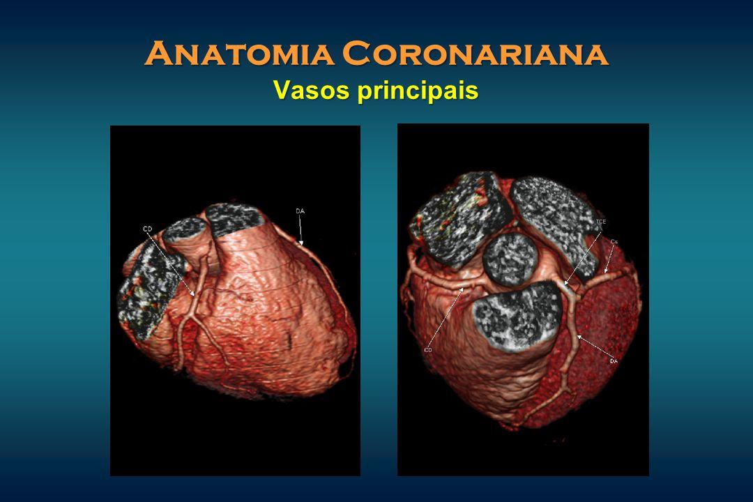Anatomia Coronariana Vasos principais