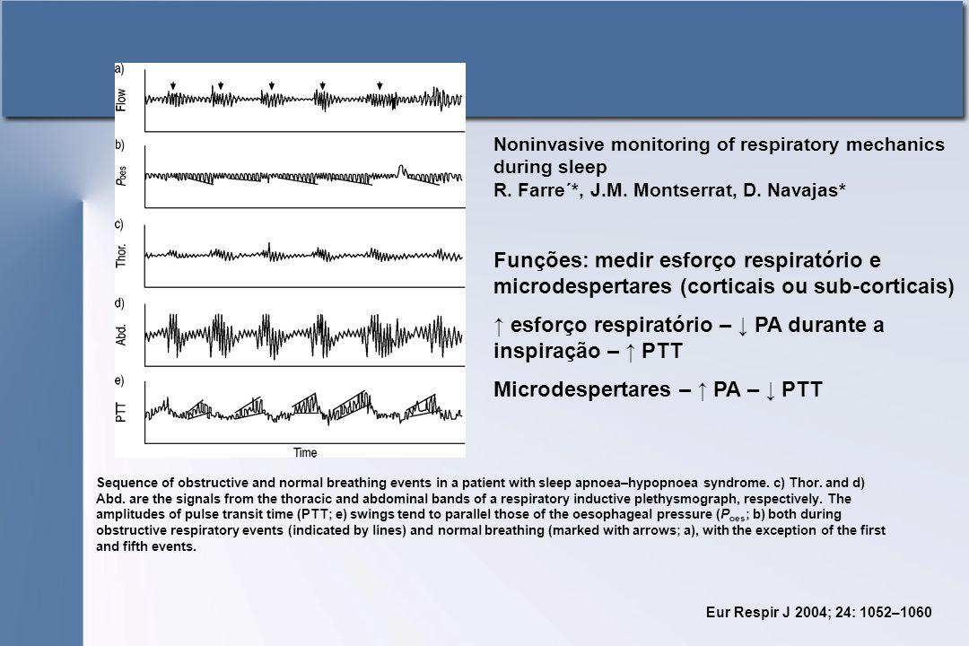 ↑ esforço respiratório – ↓ PA durante a inspiração – ↑ PTT