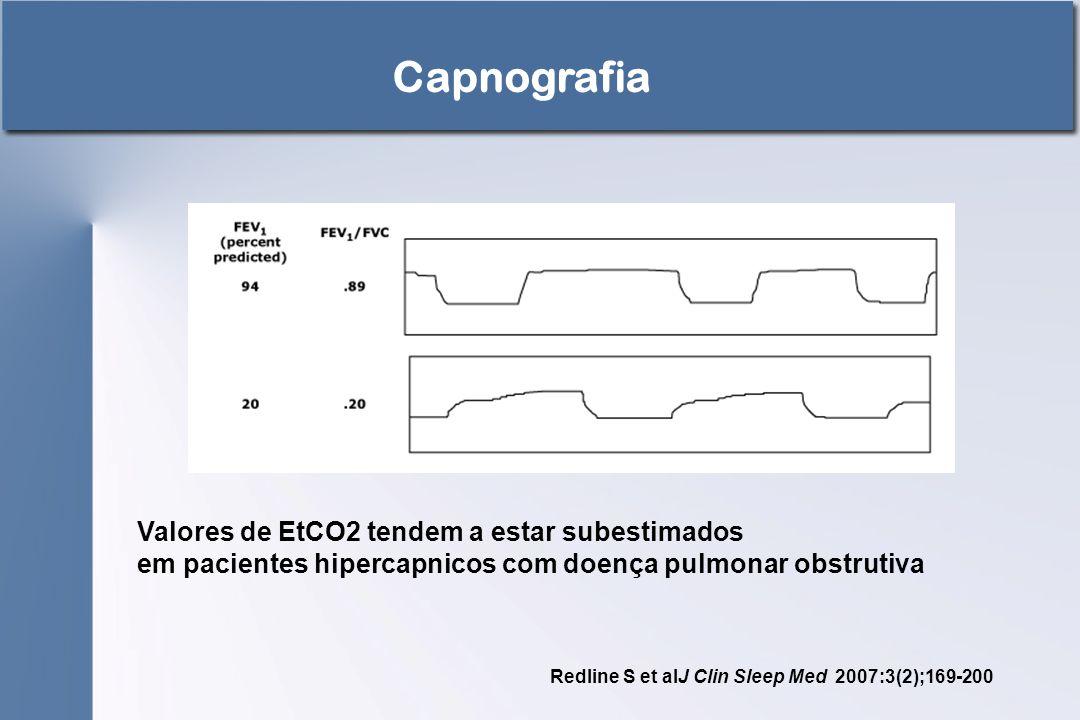 Capnografia Valores de EtCO2 tendem a estar subestimados