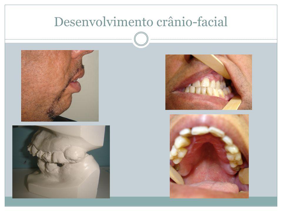 Desenvolvimento crânio-facial
