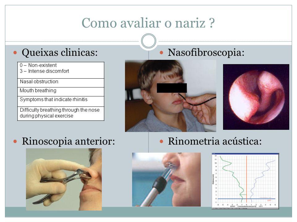 Como avaliar o nariz Queixas clinicas: Rinoscopia anterior:
