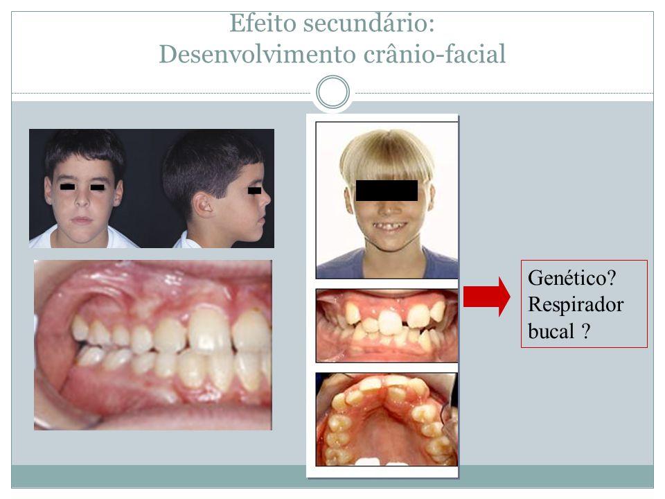 Efeito secundário: Desenvolvimento crânio-facial