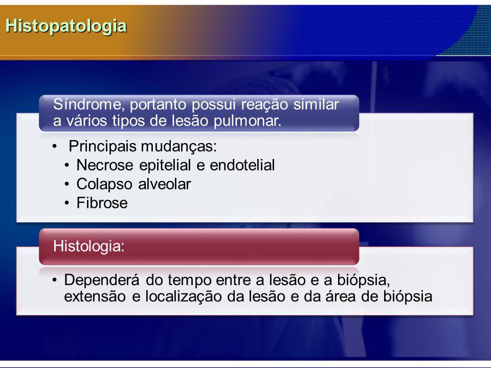 Histopatologia Síndrome, portanto possui reação similar a vários tipos de lesão pulmonar. Principais mudanças: