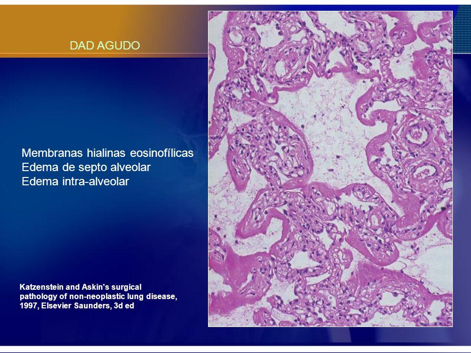 Membranas hialinas eosinofílicas Edema de septo alveolar