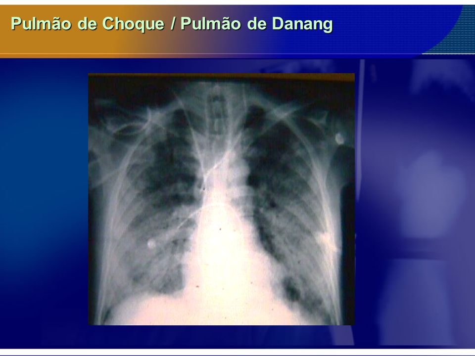 Pulmão de Choque / Pulmão de Danang