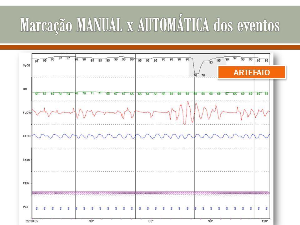 Marcação MANUAL x AUTOMÁTICA dos eventos