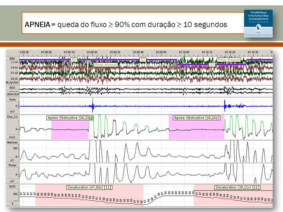 APNEIA = queda do fluxo ≥ 90% com duração ≥ 10 segundos
