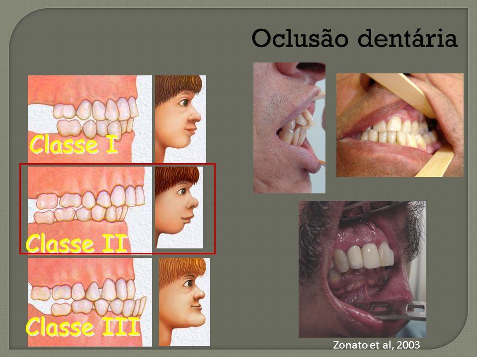 Oclusão dentária Classe I Classe II Classe III Zonato et al, 2003