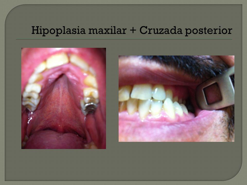 Hipoplasia maxilar + Cruzada posterior