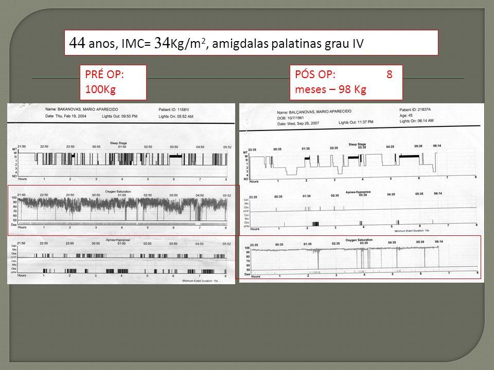44 anos, IMC= 34Kg/m2, amigdalas palatinas grau IV