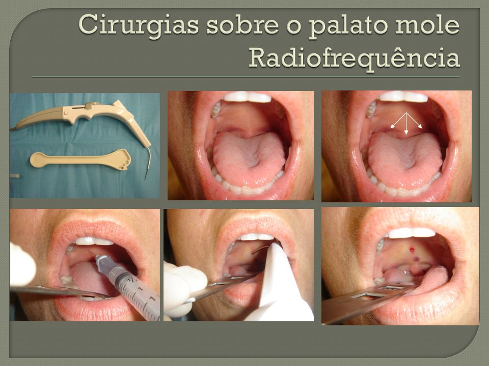 Cirurgias sobre o palato mole Radiofrequência