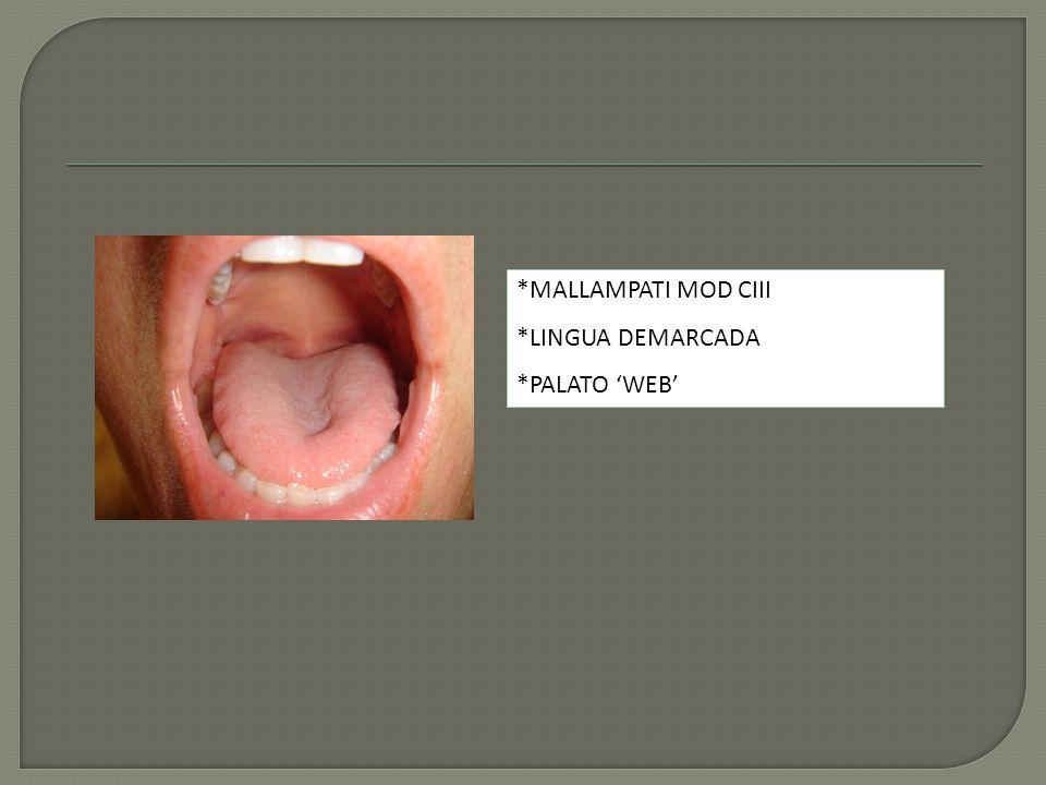 *MALLAMPATI MOD CIII *LINGUA DEMARCADA *PALATO 'WEB'