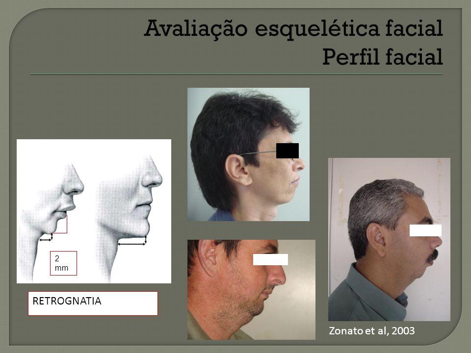 Avaliação esquelética facial Perfil facial