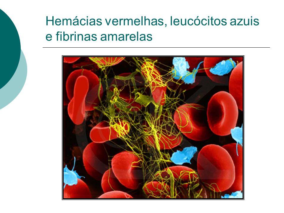 Hemácias vermelhas, leucócitos azuis e fibrinas amarelas