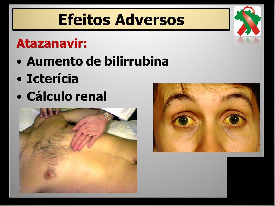 Efeitos Adversos Atazanavir: Aumento de bilirrubina Icterícia