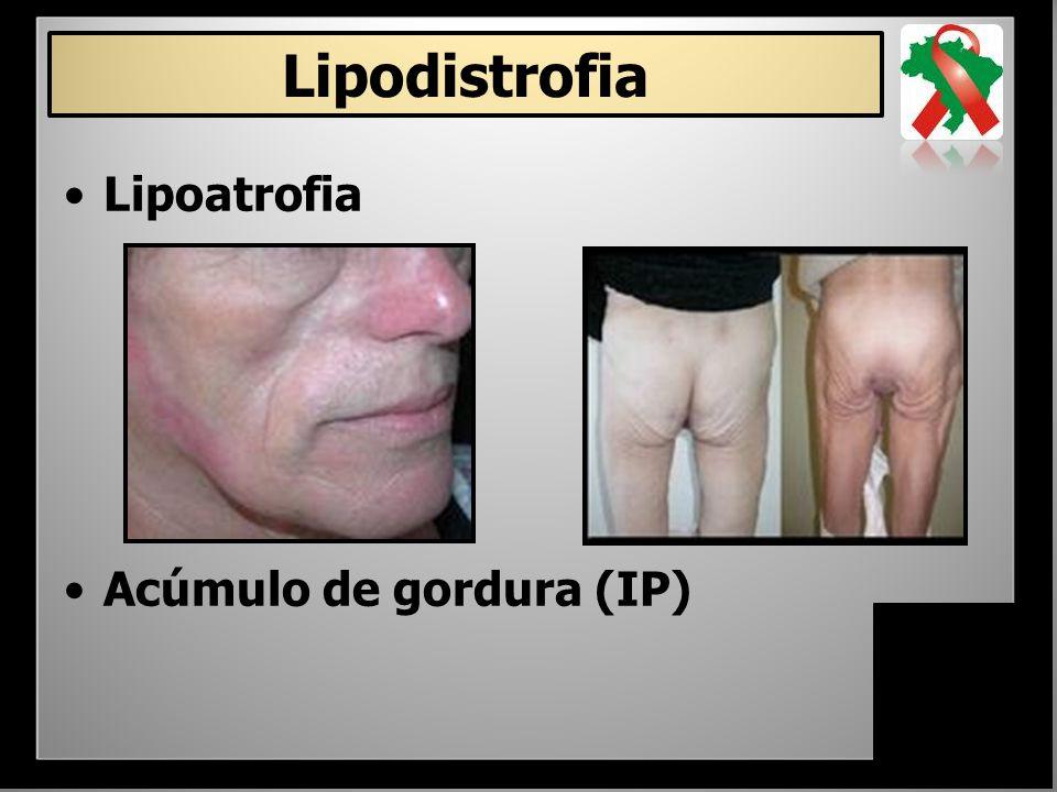 Lipodistrofia Lipoatrofia Acúmulo de gordura (IP)