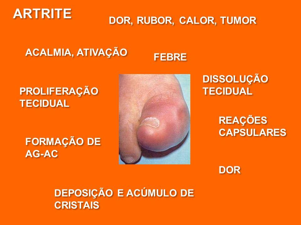 ARTRITE DOR, RUBOR, CALOR, TUMOR ACALMIA, ATIVAÇÃO FEBRE