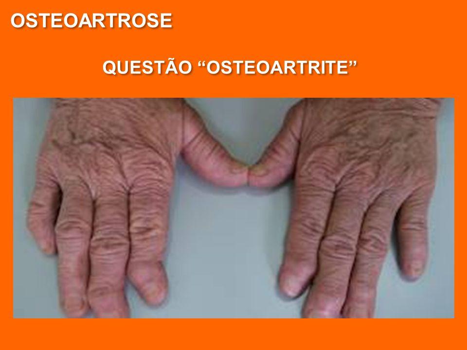 OSTEOARTROSE QUESTÃO OSTEOARTRITE