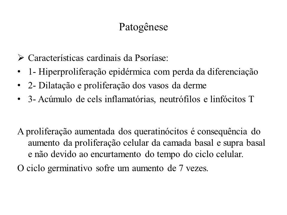 Patogênese Características cardinais da Psoríase: