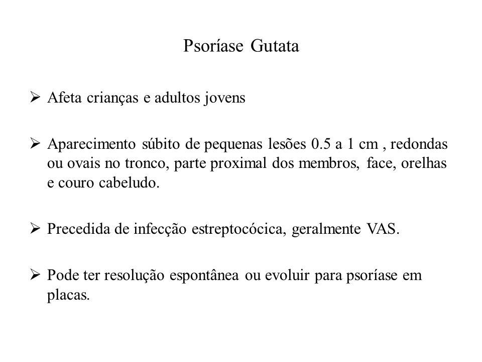 Psoríase Gutata Afeta crianças e adultos jovens